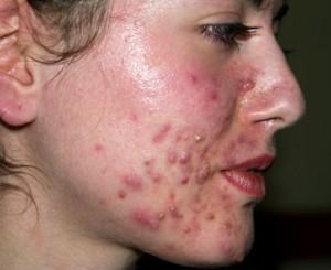 acne-vinagre