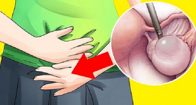 cistos no ovario