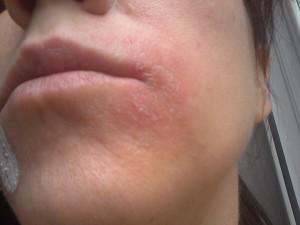 сильная аллергия на глазах чем лечить