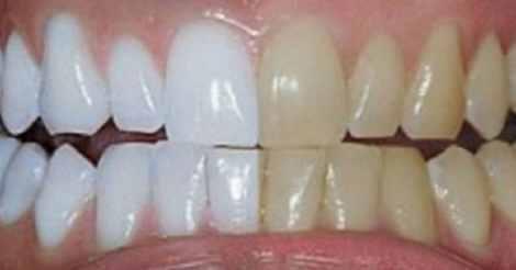 clarear_dentes