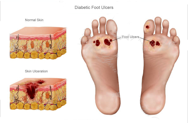 pé diabetico