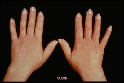 esclerodermia 7