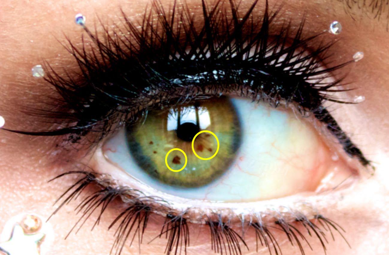 manchas nos olhos